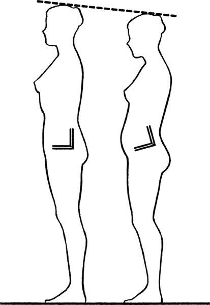 Posture Issues for glute