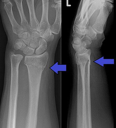 Collar Bone fracture snowboarding