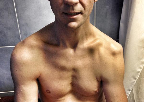 Collarbone fracture