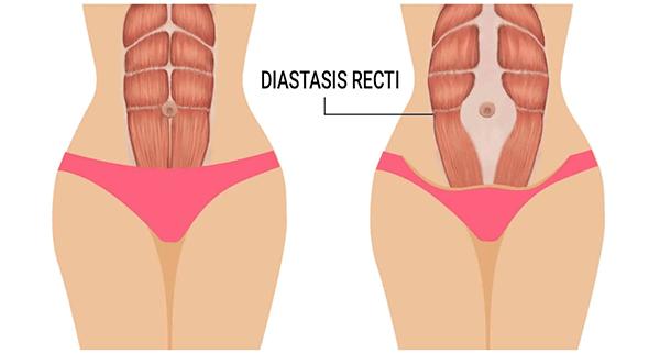 Diastasis Recti Diagram