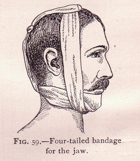 Antiquated TMJ jaw treatment